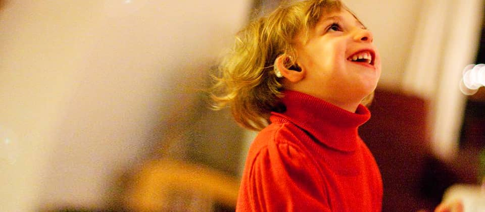 Uma ist mit einem extrem seltenen genetischen Defekt zur Welt gekommen.