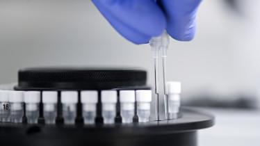 Ein Labormitarbeiter bereitet die Probenröhrchen zur Virus-Diagnostik vor.
