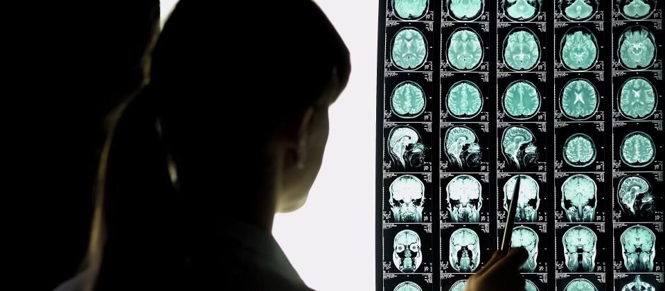 Eine Forscherin betrachtet Röntgenaufnahmen eines Gehirns.